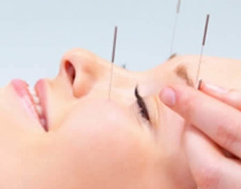 Close up view of a smiling woman receiving acupuncture on her eyebrows and cheeks